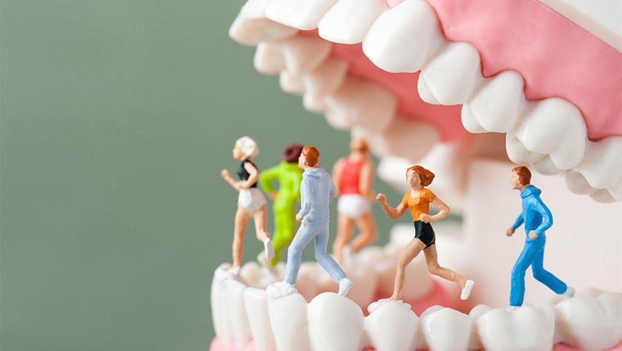 アスリートと虫歯の関係、その有病率は? 文献レビューとメタ解析の結果