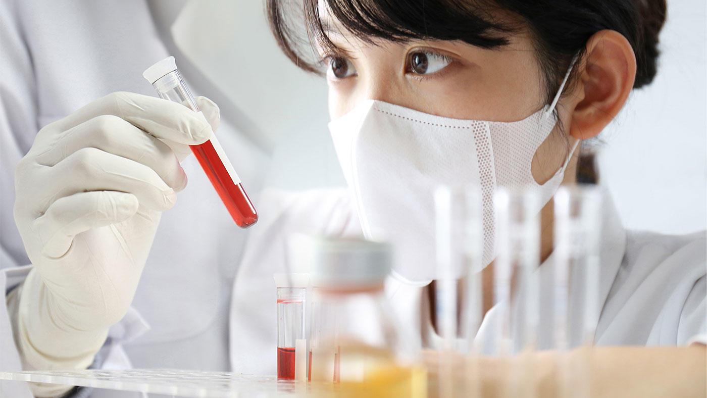 運動生理学とスポーツ栄養のための血液バイオマーカー
