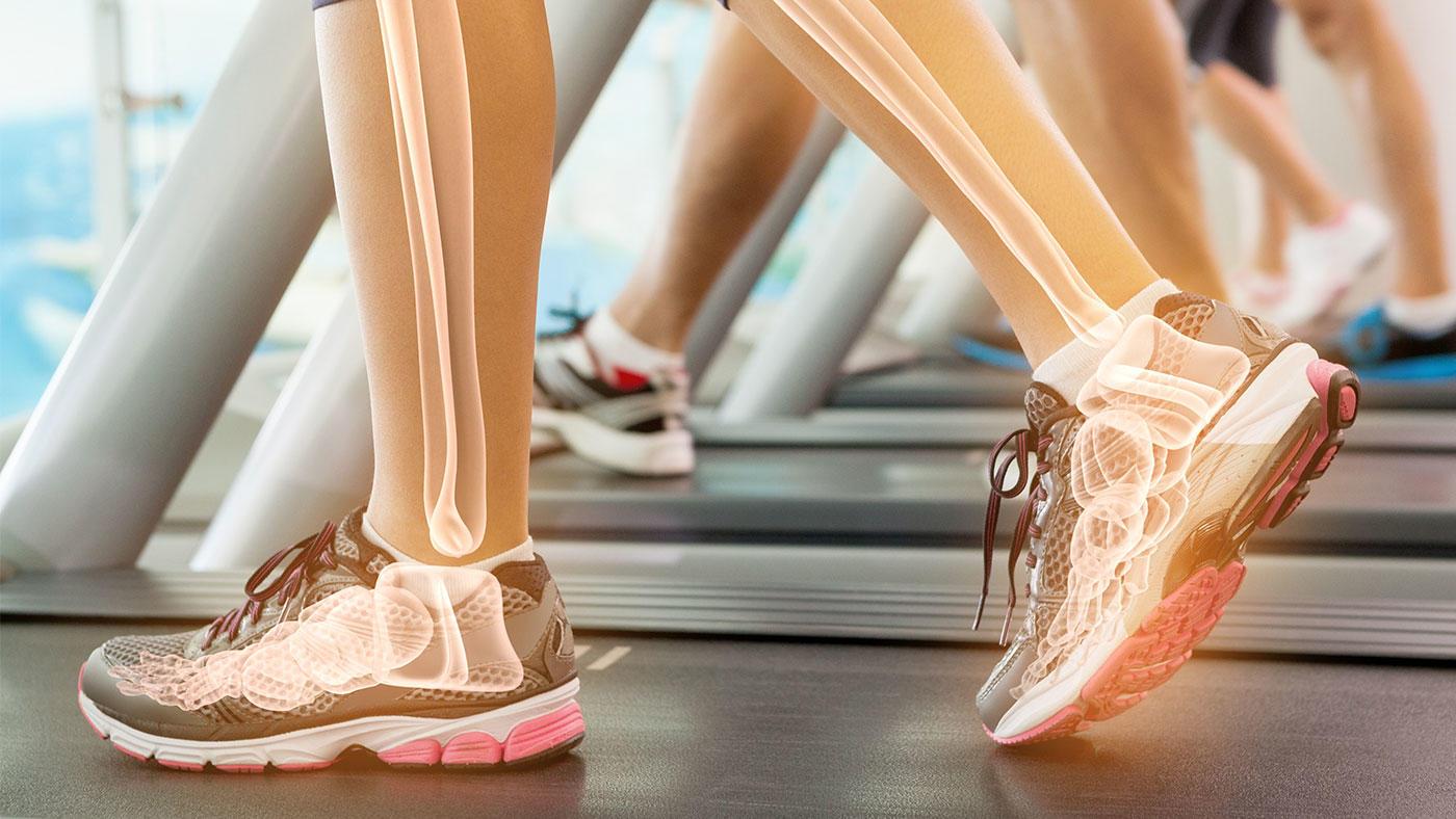 短期間のケトジェニック食(低炭水化物・高脂肪食)で骨代謝マーカーに負の影響